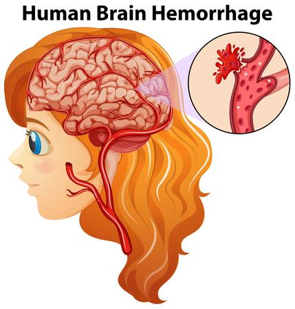 hemorragia: Diagrama que muestra la ilustración hemorragia cerebral humana Vectores