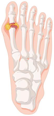 Gout toe in human foot illustration Illustration