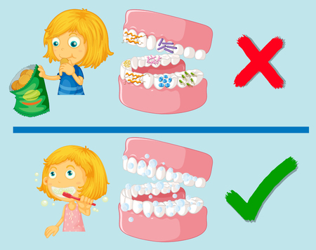 dientes sucios: Chica con la ilustración sucia y limpia los dientes