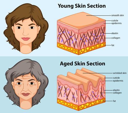 piel humana: Diagrama que muestra la piel joven y envejecido en la ilustración humana Vectores