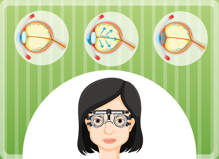 Eye problem in human body illustration Illustration