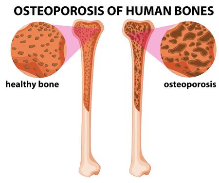 human bones: Diagram showing osteoporosis of human bones illustration