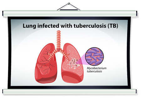 lung cancer: Diagram showing lung cancer illustration