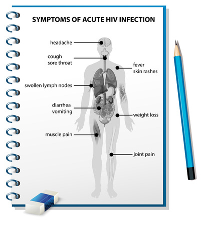 hiv: Symptoms of acute HIV infection diagram illustration Illustration