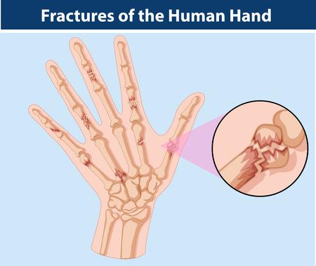 deformity: Diagram of fractures in human hand illustration
