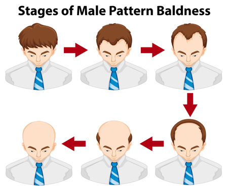 Diagram showing stages of male pattern baldness illustration