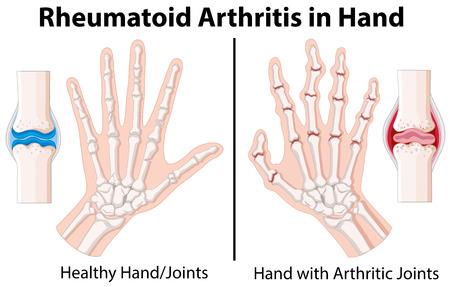 618 Rheumatoid Arthritis Cliparts, Stock Vector And Royalty Free ...
