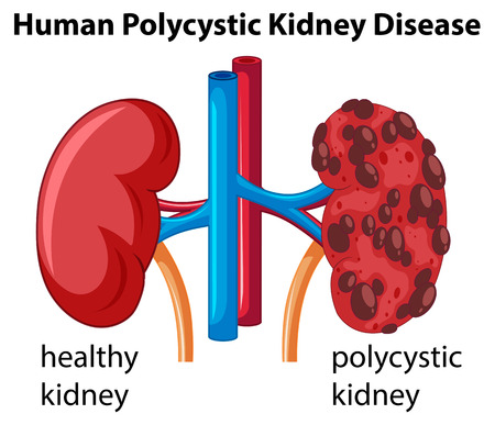 ailing: Diagram showing human polycystic kidney disease illustration