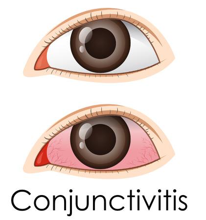 Conjunctivitis in human eyes illustration Illustration
