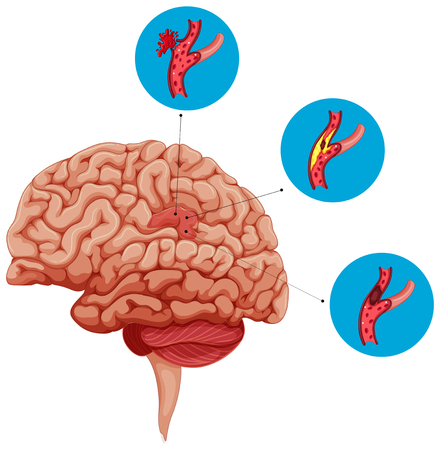 Diagram showing problems with brain illustration