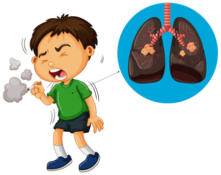 Boy smoking cigarette and unhealthy lungs diagram illustration Illustration