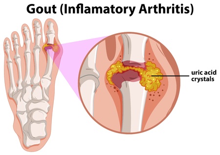 Diagram showing gout in human foot illustration