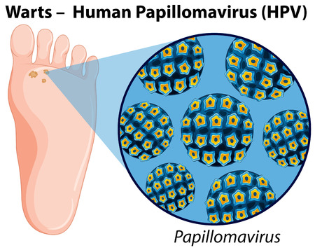 Diagram showing human papillomavirus  illustration