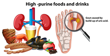 High-Purine Foods and Drinks illustration 向量圖像