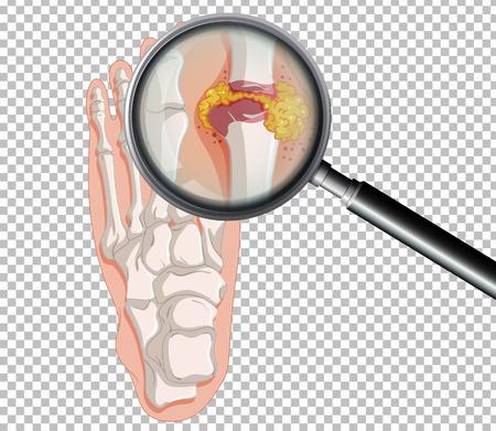 A Human Gout on Transparent Background illustration