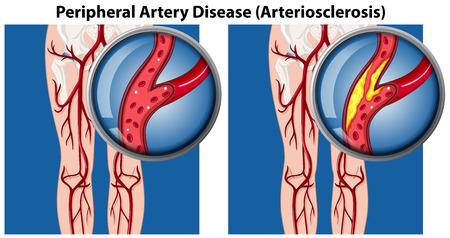 Ein Vergleich der Darstellung der peripheren Arterienerkrankung Vektorgrafik
