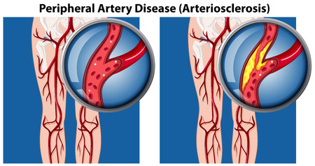 Una comparación de la ilustración de la enfermedad arterial periférica Ilustración de vector