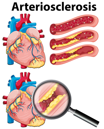 A Heart with Arteriosclerosis on White Background illustration Vectores