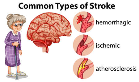 Common Types of Stroke  illustration