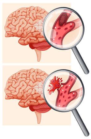 Ilustracja ludzkiego mózgu i udaru krwotocznego