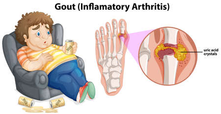 A Fat Man Gout on Foot illustration Ilustração