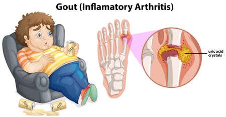 A Fat Man Gout on Foot illustration Illustration
