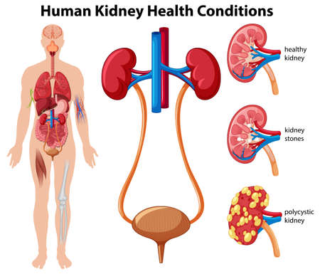 Human Kidney Health Conditions illustration Vectores