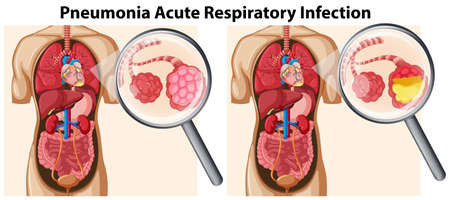Pneumonia Acute Respiratory Infection illustration Stockfoto - 114980804