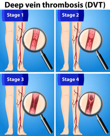 Four Stages of Deep Vein Thrombosis illustration
