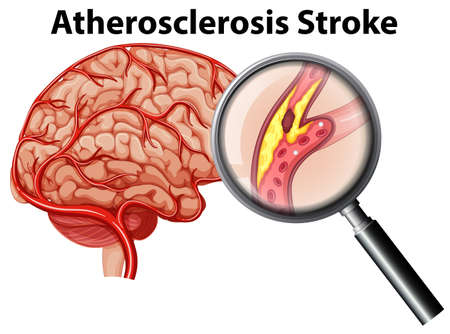 Atherosclerosis Stroke on White Background illustration 일러스트