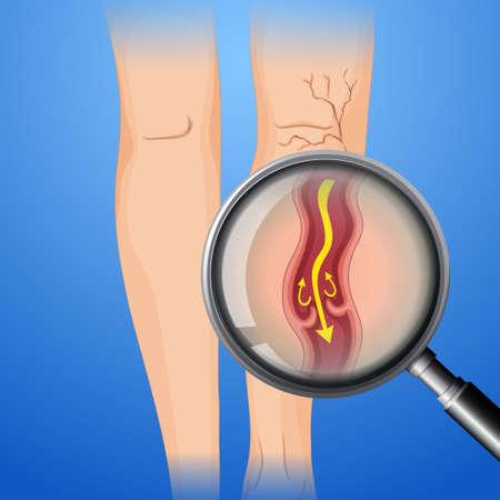 Deep Vein Thrombosis on Leg illustration