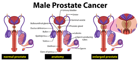 Male prostate cancer diagram illustration