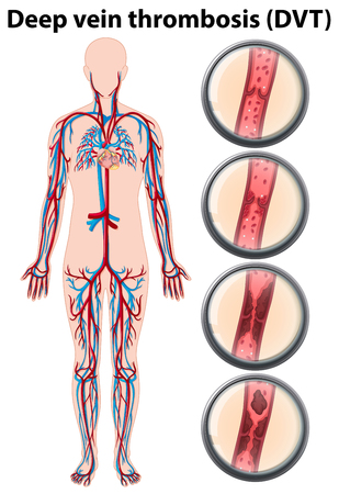 Deep vein thrombosis anatomy illustration 向量圖像