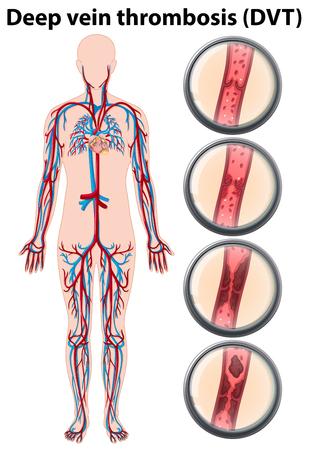 Deep vein thrombosis anatomy illustration Illustration