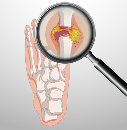 Human feet with gout illustration Çizim