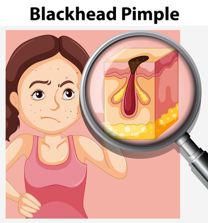 Young woman with blackhead pimple illustration Illustration