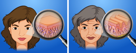 Female younger skin and aging skin illustration