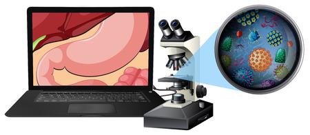 Un microscope et une illustration de bactéries de l'estomac