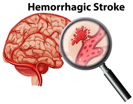 Una ilustración de accidente cerebrovascular hemorrágico de anatomía humana