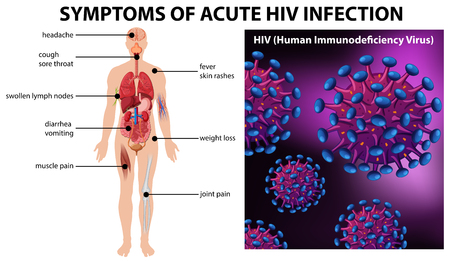 Symptoms of acute HIV infection illustration Foto de archivo - 110347762