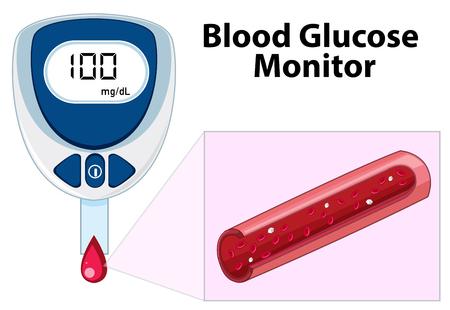 Monitor de glucosa en sangre en la ilustración de fondo blanco Ilustración de vector