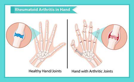 Scientific medical illustration of rheumatoid arthritis illustration Vector Illustration