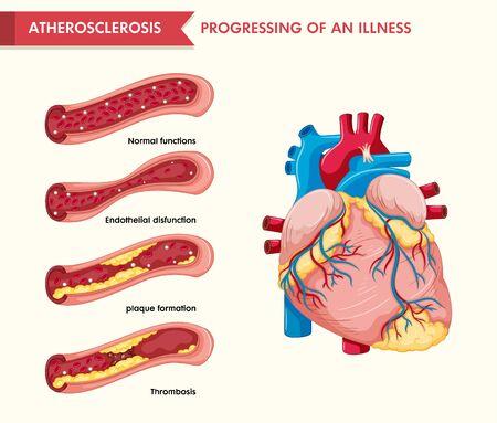 Scientific medical illustration of atherosclerosis illustration