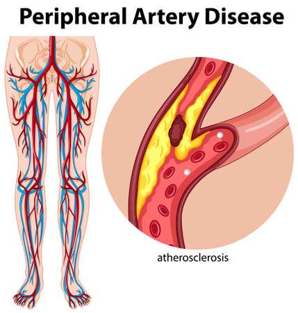 Medical peripheral artery disease illustration
