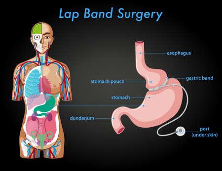 Lap band surgery anatomy illustration