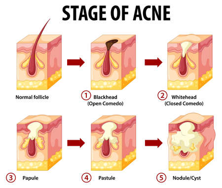 Stages of skin acne anatomy illustration