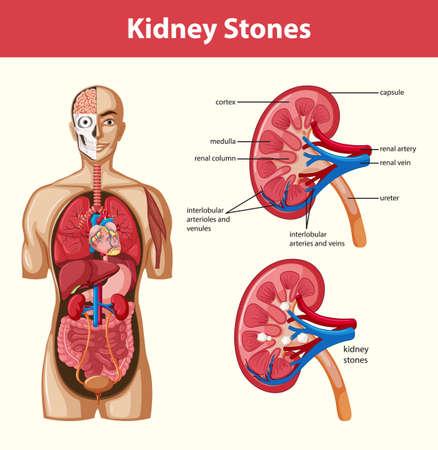 Human kidney stones anatomy cartoon style infographic illustration