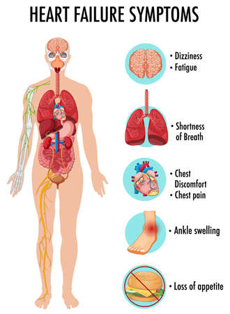 Heart failure symptoms information infographic illustration