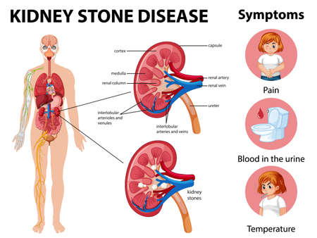 Kidney stones disease and symptoms infographic illustration