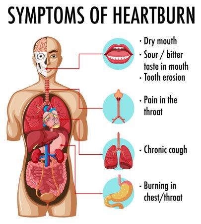 Symptoms of heartburn information infographic illustration